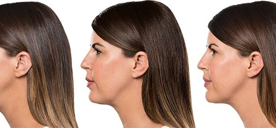 Kybella: A New Treatment for Double Chins