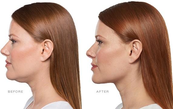 Chin Fat Reduction Kybella